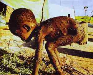 starving-child-1.jpg?w=300&h=243